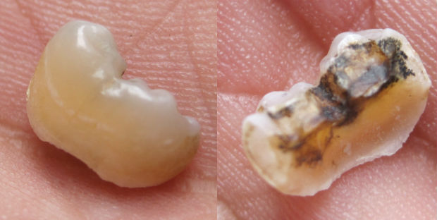 molar tooth pain - 620×312