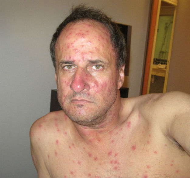 The False Curse of Morocco - TheDromomaniac.comSevere Adult Chicken Pox